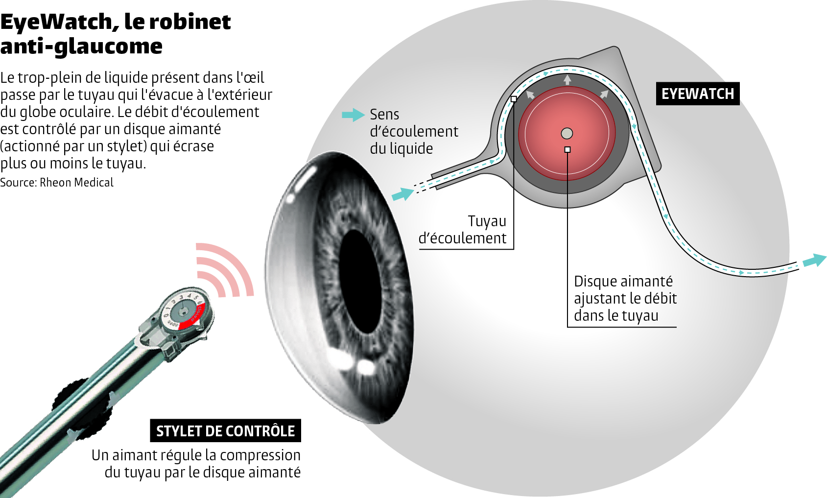 un robinet implant dans l il pour aider les patients atteints de glaucome le temps. Black Bedroom Furniture Sets. Home Design Ideas